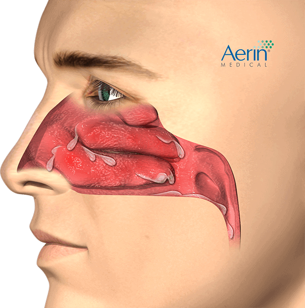 Patient_Lateral_Chronic-Rhimitis_Drainage_HR