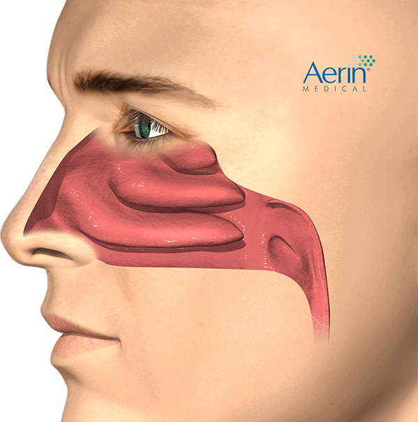 Patient_Lateral_Normal-Airway_HR